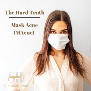 How To Treat Acne Caused By Facemasks