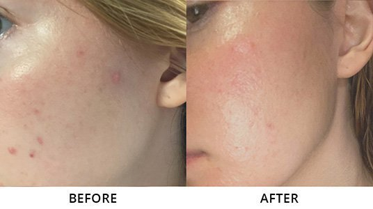 alexandra g. before and after left cheek