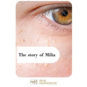 What Is Milia?