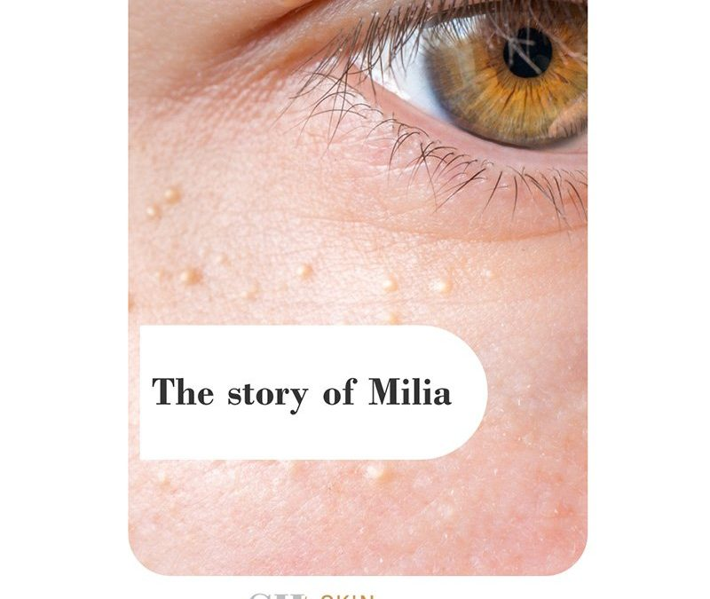 the story of milia